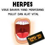 Herpes Dapat Disembuhkan Dengan Propolis Brazillian