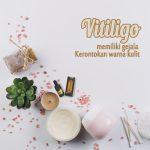 Ketahui Penyebab dan Obati Vitiligo dengan Propolis