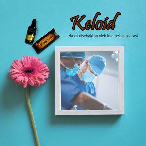 Obat Herbal Sembuhkan Penyakit Keloid Propolis Brazillian