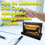 Apa itu Melanoma Dan Cara Mengobati Menggunakan Propolis