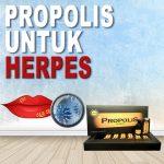Kandungan Propolis Brazillian Untuk Herpes