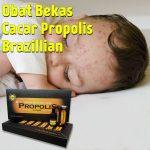 Obat Bekas Cacar Propolis Brazillian