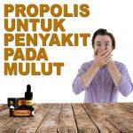 Manfaat Propolis Brazillian Untuk Penyakit Mulut