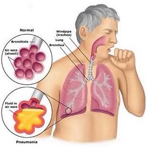 Perawatan penyakit bronkitis di rumah